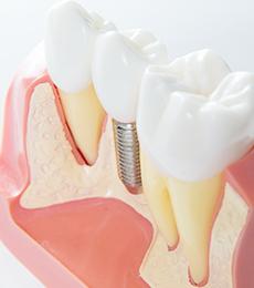 顎の骨が少ない人のためのインプラント治療